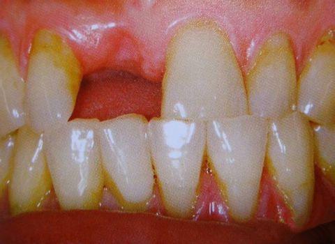 种植牙第一步:进行术前检查和术前处理