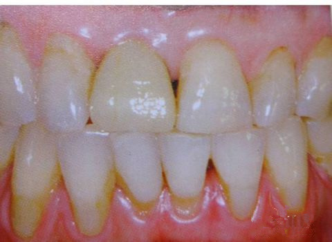 种植牙的牙冠