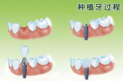 什么是种植牙,种植牙过程