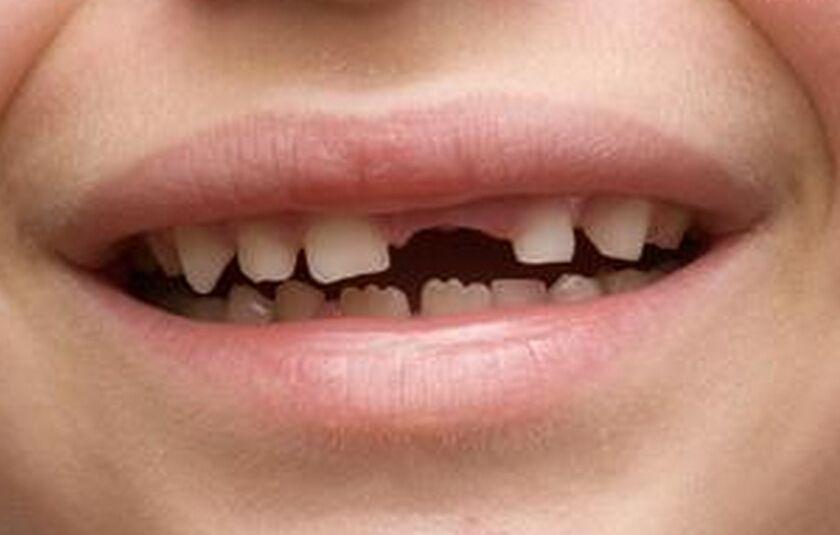 种一颗牙多少钱