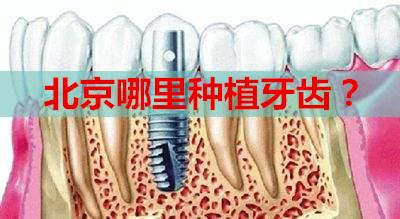 北京哪里种植牙齿?