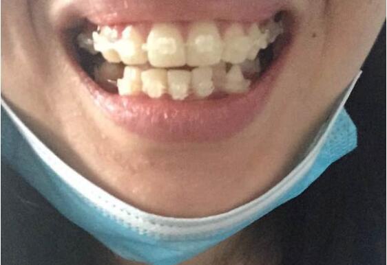 半隐形牙套