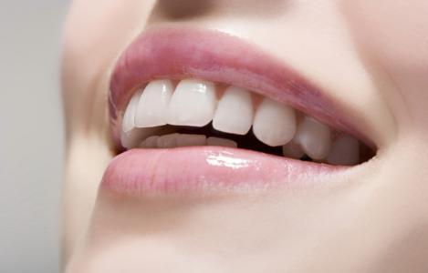 全隐形牙套